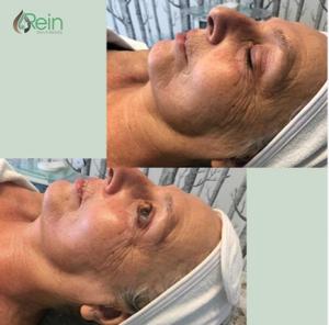 Effecten van de Rein & Skinfitness behandeling.